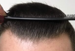 Are you thinking about how long does Hair Transplant Last?